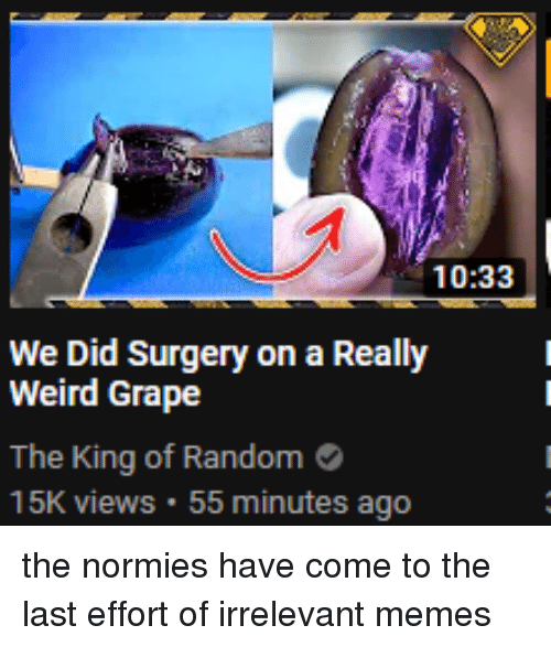 1033 We Did Surgery on a Really Weird Grape the King of