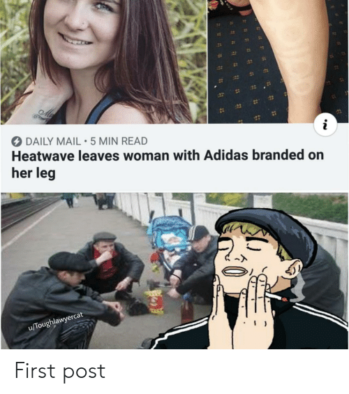 Adidas: 12  DAILY MAIL 5 MIN READ  Heatwave leaves woman with Adidas branded on  her leg  u/Toughlawyercat First post