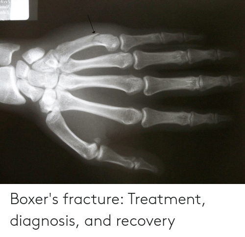 159 Mo Boxer's Fracture Treatment Diagnosis and Recovery | Fracture