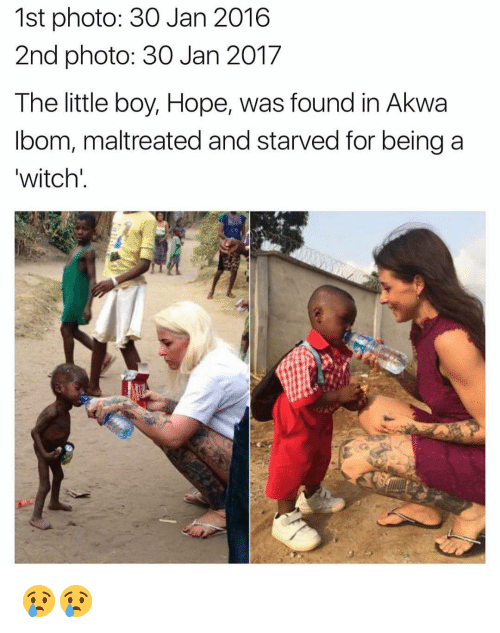 The Littl: 1st photo: 30 Jan 2016  2nd photo: 30 Jan 2017  The little boy, Hope, was found in Akwa  bom, maltreated and starved for being a  witch' 😢😢