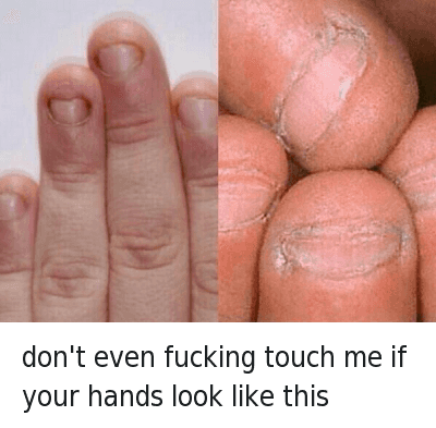"Ã…¤: Don't even fucking touch me if your hands look like this  @tomfromthebar  HOW HAVE PEOPLE LIKE THIS EVEN MANAGED TO BREED INTO THE 21ST CENTURY.. WHEN PEOPLE LIKE THIS TOUCH YOUR FOOD YOU JUST SAY ""Just keep it, you dick""..FUCK.. THATS GROSS, I SWEAR IF I WAS ABOUT TO SMASH A 10/10 BUT PEEPED THOSE FINGERS, I WOULD PUNCH HER STRAIGHT IN THE JAW FOR EVEN COMING AT ME WITH THAT NON-SENSE. CALL HER A CAB(SHE'S PAYING) BUT I'D WARN THE CAB DRIVER ABOUT HER FINGERS JUST IN CASE HE AINT WITH IT.. WOULDN'T WANT TO FUCK UP THE DUDE'S NIGHT TOO.. UNFOLLOW ME IF YOURE FINGERS ARE LIKE THIS DONT LIKE MY SHIT WITH THAT BULLSHIT don't even fucking touch me if your hands look like this"