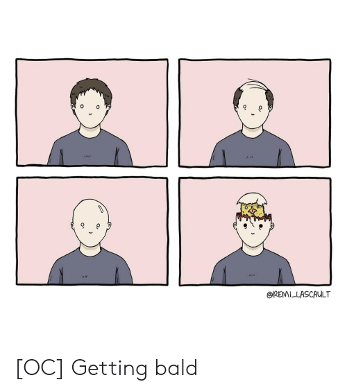 Bald and Getting: 6  REMILLASCAULT [OC] Getting bald