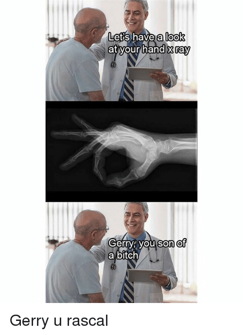 Bitch, Dank Memes, and Ray: a look  Lets have  at your hand x ray  Gerry you son et  a bitch Gerry u rascal