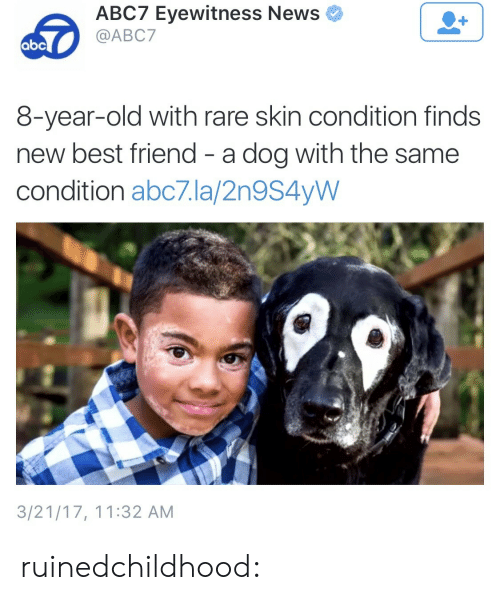 Best Friend, Gif, and News: ABC7 Eyewitness News  @ABC7  8-year-old with rare skin condition finds  new best friend - a dog with the same  condition abc7.la/2n9S4yW  3/21/17, 11:32 AM ruinedchildhood: