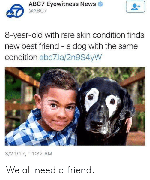 Abc, Best Friend, and News: ABC7 Eyewitness News  @ABC7  abc  8-year-old with rare skin condition finds  new best friend - a dog with the same  condition abc7.la/2n9S4yW  3/21/17, 11:32 AM We all need a friend.