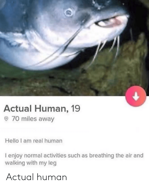 normal: Actual Human, 19  O 70 miles away  Hello I am real human  I enjoy normal activities such as breathing the air and  walking with my leg Actual human