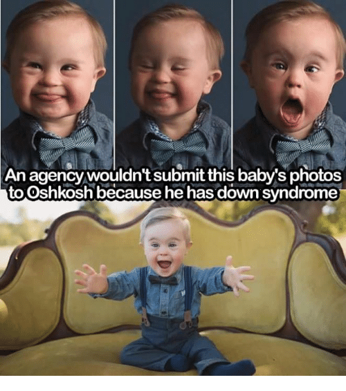 Down Syndrom: An agency wouldn't submit this  baby's photos  to Oshkosh because he has down syndrome