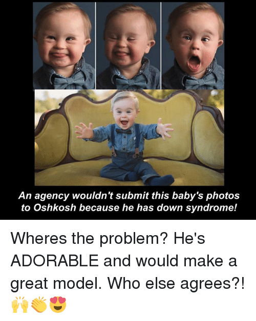 Down Syndrom: An agency wouldn't submit this baby's photos  to Oshkosh because he has down syndrome! Wheres the problem? He's ADORABLE and would make a great model. Who else agrees?!🙌👏😍