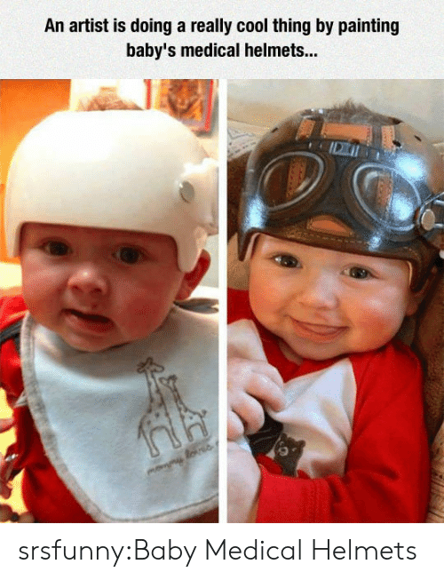 Helmets: An artist is doing a really cool thing by painting  baby's medical helmets... srsfunny:Baby Medical Helmets