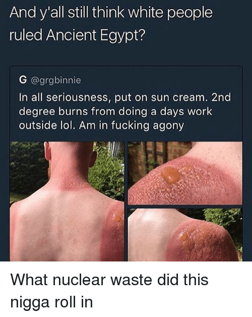 Egypte: And y all still think white people  ruled Ancient Egypt?  G @grgbinnie  In all seriousness, put on sun cream. 2nd  degree burns from doing a days work  outside lol. Am in fucking agony What nuclear waste did this nigga roll in