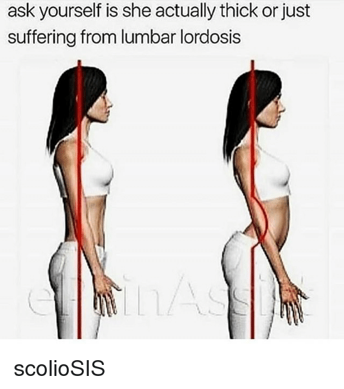 Memes, Suffering, and 🤖: ask yourself is she actually thick or just  suffering from lumbar lordosis scolioSIS