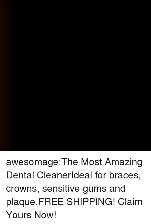 Crowns: awesomage:The Most Amazing Dental CleanerIdeal for braces, crowns, sensitive gums and plaque.FREE SHIPPING! Claim Yours Now!