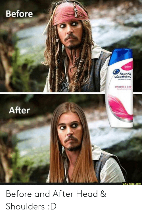 head: Before and After Head & Shoulders :D