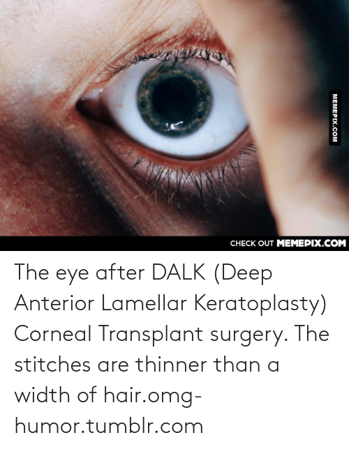 128i: CНECK OUT MЕМЕРIХ.COM  МЕМЕРIХ.сом The eye after DALK (Deep Anterior Lamellar Keratoplasty) Corneal Transplant surgery. The stitches are thinner than a width of hair.omg-humor.tumblr.com