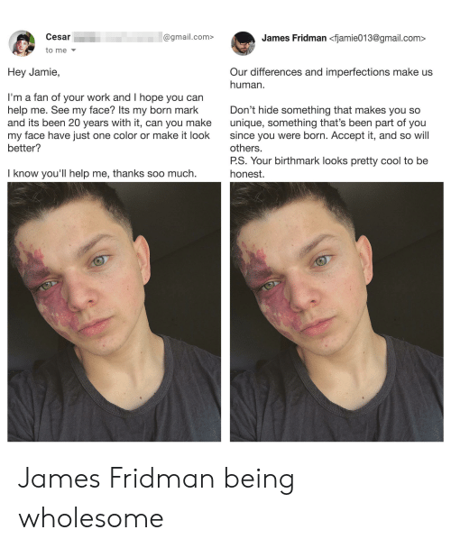 Work, Cool, and Gmail: Cesar  James Fridman <fjamie013@gmail.com>  @gmail.com>  to me  Our differences and imperfections make us  human  Hey Jamie,  I'm a fan of your work and I hope you can  help me. See my face? Its my born mark  and its been 20 years with it, can you make  my face have just one color or make it look  better?  Don't hide something that makes you so  unique, something that's been part of you  since you were born. Accept it, and so will  others.  P.S. Your birthmark looks pretty cool to be  I know you'll help me, thanks soo much  honest. James Fridman being wholesome