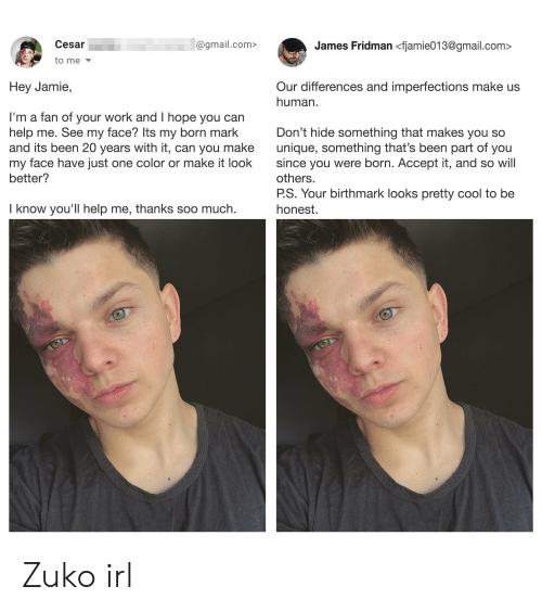 Work, Cool, and Gmail: Cesar  James Fridman <fjamie013@gmail.com>  @gmail.com>  to me  Our differences and imperfections make us  human  Hey Jamie,  I'm a fan of your work and I hope you can  help me. See my face? Its my born mark  and its been 20 years with it, can you make  my face have just one color or make it look  better?  Don't hide something that makes you so  unique, something that's been part of you  since you were born. Accept it, and so will  others.  P.S. Your birthmark looks pretty cool to be  I know you'll help me, thanks soo much.  honest. Zuko irl