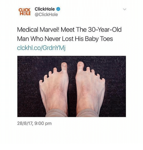 marvell: CLICK ClickHole  HOLE @ClickHole  Medical Marvel! Meet The 30-Year-Old  Man Who Never Lost His Baby Toes  clckhl.co/GrdnYMj  28/8/17, 9:00 pm