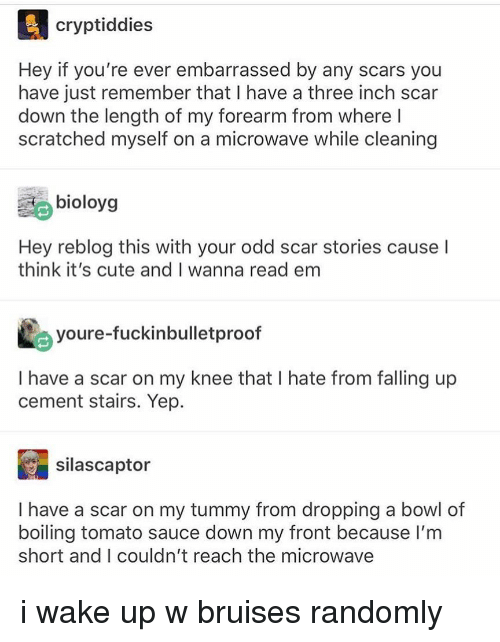 Cute, Tumblr, and Sauce: cryptiddies  Hey if you're ever embarrassed by any scars you  have just remember that I have a three inch scar  down the length of my forearm from where l  scratched myself on a microwave while cleaning  bioloys  Hey reblog this with your odd scar stories cause I  think it's cute and I wanna read em  youre-fuckinbulletproof  I have a scar on my knee that I hate from falling up  cement stairs. Yep.  silascaptor  I have a scar on my tummy from dropping a bowl of  boiling tomato sauce down my front because lI'm  short and I couldn't reach the microwave i wake up w bruises randomly