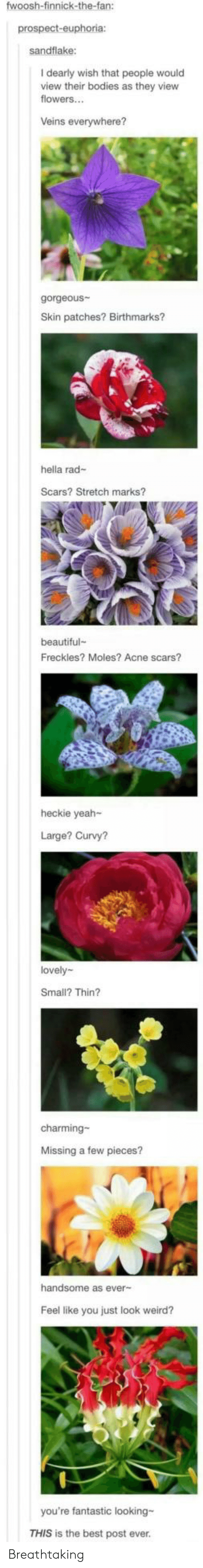 freckles: fwoosh-finnick-the-fan:  prospect-euphoria:  sandflake:  I dearly wish that people would  view their bodies as they view  flowers...  Veins everywhere?  gorgeous  Skin patches? Birthmarks?  hella rad-  Scars? Stretch marks?  beautiful  Freckles? Moles? Acne scars?  heckie yeah-  Large? Curvy?  lovely  Small? Thin?  charming-  Missing a few pieces?  handsome as ever-  Feel like you just look weird?  you're fantastic looking-  THIS is the best post ever. Breathtaking