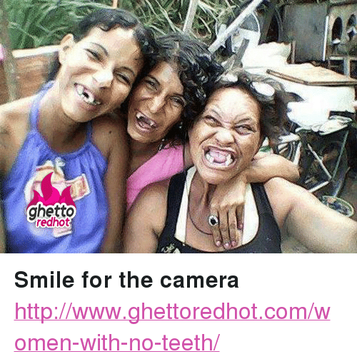 woman with no teeth