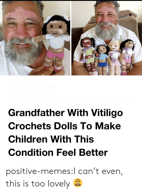 Children, Memes, and Tumblr: Grandfather With Vitiligo  Crochets Dolls To Make  Children With This  Condition Feel Better positive-memes:I can't even, this is too lovely 😩