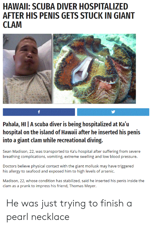 Vomiting: HAWAIL: SCUBA DIVER HOSPITALIZED  AFTER HIS PENIS GETS STUCK IN GIANT  Pahala, HI | A scuba diver is being hospitalized at Ka'u  hospital on the island of Hawaii after he inserted his penis  into a giant clam while recreational diving.  Sean Madison, 22, was transported to Ka'u hospital after suffering from severe  breathing complications, vomiting, extreme swelling and low blood pressure.  Doctors believe physical contact with the giant mollusk may have triggered  his allergy to seafood and exposed him to high levels of arsenic.  Madison, 22, whose condition has stabilized, said he inserted his penis inside the  clam as a prank to impress his friend, Thomas Meyer. He was just trying to finish a pearl necklace