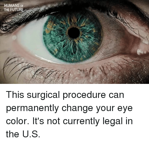 eyes color: HUMANS OF  THE FUTURE This surgical procedure can permanently change your eye color.  It's not currently legal in the U.S.