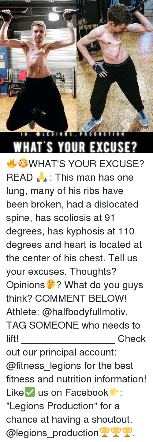 """scoliosis: I G  LEGION S  P R O D U C T I O N  WHAT'S YOUR EXCUSE? 🔥😳WHAT'S YOUR EXCUSE? READ 🙏 : This man has one lung, many of his ribs have been broken, had a dislocated spine, has scoliosis at 91 degrees, has kyphosis at 110 degrees and heart is located at the center of his chest. Tell us your excuses. Thoughts? Opinions🤔? What do you guys think? COMMENT BELOW! Athlete: @halfbodyfullmotiv. TAG SOMEONE who needs to lift! _________________ Check out our principal account: @fitness_legions for the best fitness and nutrition information! Like✅ us on Facebook👉: """"Legions Production"""" for a chance at having a shoutout. @legions_production🏆🏆🏆."""