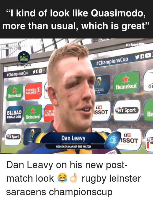 """Turk: """"I kind of look like Quasimodo  more than usual, which is great""""  BT  RUGBY  MEMES  am  #ChampionsCup yK2O(  #ChampionsCup yno  Heineken  GI  TURKISH  HAMMONS  HeinekenLINES  TS  BILBAO  FINA45 2018 Heineken, AİRLİN  TURK  BT Sport  He  BT Sport  Dan Leavy  2  HEINEKEN MAN OF THE MATCH Dan Leavy on his new post-match look 😂👌🏼 rugby leinster saracens championscup"""