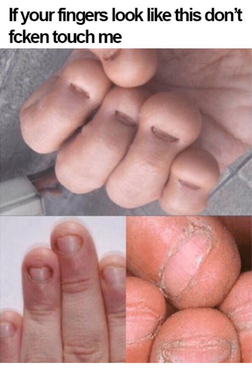 Memes, 🤖, and Touch: If your fingers look like this don't  fcken touch me