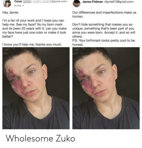 Work, Cool, and Gmail: James Fridman <fjamie013@gmail.com>  Cesar  @gmail.com>  to me  Hey Jamie,  Our differences and imperfections make us  human  I'm a fan of your work and I hope you can  help me. See my face? Its my born mark  and its been 20 years with it, can you make  my face have just one color or make it look  better?  Don't hide something that makes you so  unique, something that's been part of you  since you were born. Accept it, and so will  others.  P.S. Your birthmark looks pretty cool to be  I know you'll help me, thanks soo much.  honest. Wholesome Zuko