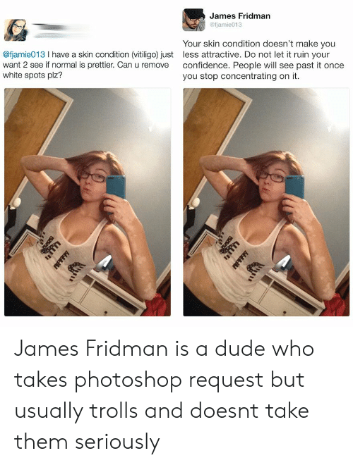 Confidence, Dude, and Photoshop: James Fridman  @fjamie013  @fjamie013 I have a skin condition (vitiligo) just  want 2 see if normal is prettier. Can u remove  white spots plz?  Your skin condition doesn't make you  less attractive. Do not let it ruin your  confidence. People will see past it once  you stop concentrating on it. James Fridman is a dude who takes photoshop request but usually trolls and doesnt take them seriously