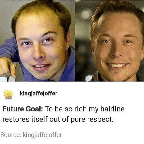 Future, Hairline, and Respect: kingjaffejoffer  Future Goal: To be so rich my hairline  restores itself out of pure respect.  Source: kingjaffejoffer
