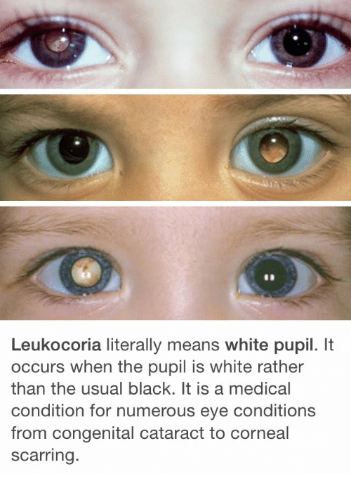 Black, White, and Eye: Leukocoria literally means white pupil. It  occurs when the pupil is white rather  than the usual black. It is a medical  condition for numerous eye conditions  from congenital cataract to corneal  scarring.