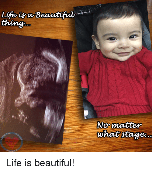 Life Is Beautiful: Life is Beautful  No matter  What stage Life is beautiful!