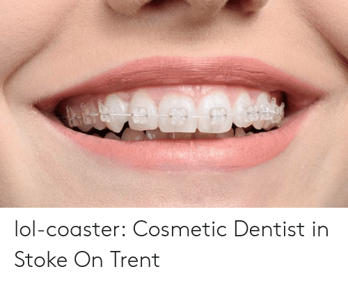 stoke: lol-coaster:  Cosmetic Dentist in Stoke On Trent