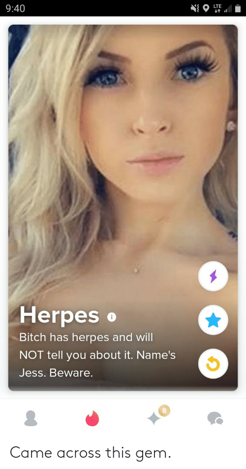 names: LTE  9:40  Herpes o  Bitch has herpes and will  NOT tell you about it. Name's  Jess. Beware. Came across this gem.