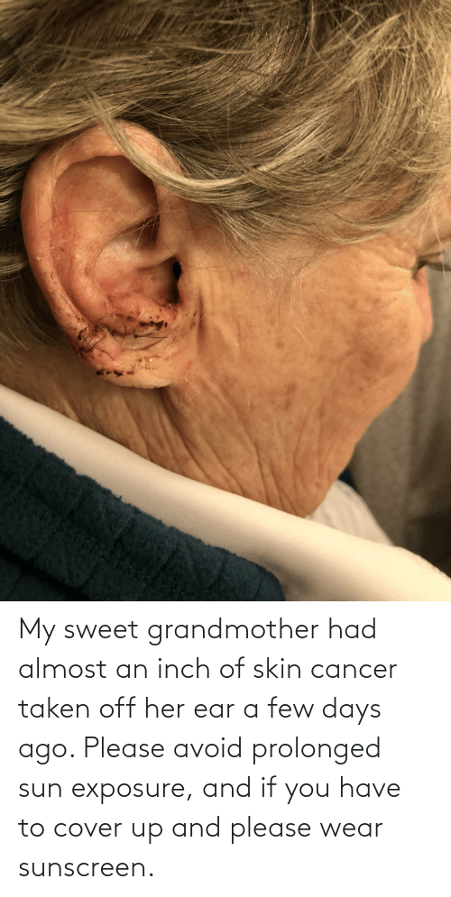 sunscreen: My sweet grandmother had almost an inch of skin cancer taken off her ear a few days ago. Please avoid prolonged sun exposure, and if you have to cover up and please wear sunscreen.