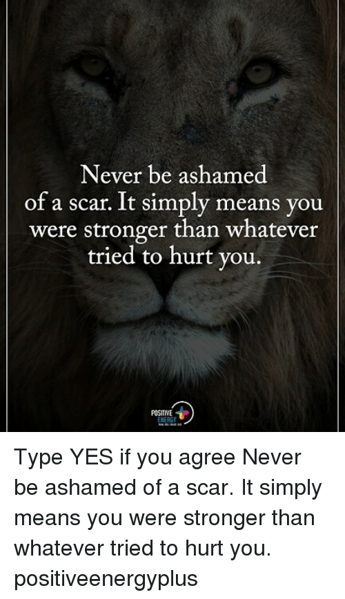 Memes, Never, and 🤖: Never be ashamed  of a scar. It simply means you  were stronger than whatever  tried to hurt you.  POSITIVE Type YES if you agree Never be ashamed of a scar. It simply means you were stronger than whatever tried to hurt you. positiveenergyplus