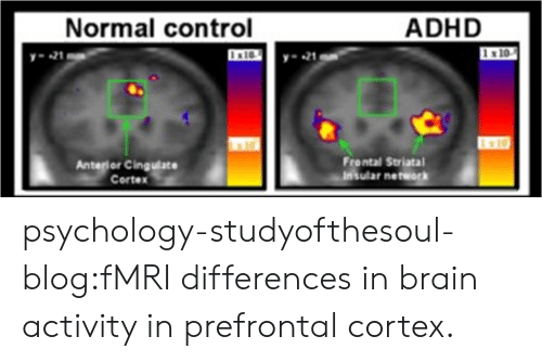 anterior: Normal control  ADHD  21  -21  x10  Anterior Cingulace  Cortex  Frontal Striatal  Insular network psychology-studyofthesoul-blog:fMRI differences in brain activity in prefrontal cortex.
