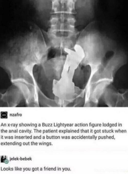 Anal, Patient, and Wings: nzafro  An x-ray showing a Buzz Lightyear action figure lodged in  the anal cavity. The patient explained that it got stuck when  it was inserted and a button was accidentally pushed,  extending out the wings.  jelek-bebek  Looks like you got a friend in you.