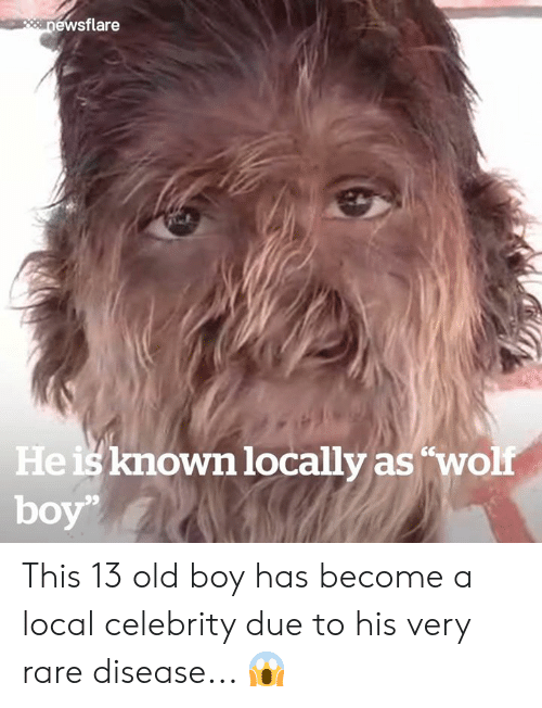 Old, Boy, and Local: peanewsflare  He is known locally as'wolf This 13 old boy has become a local celebrity due to his very rare disease... 😱