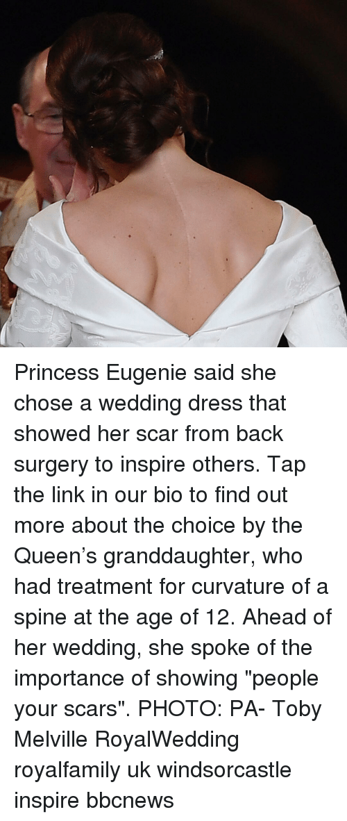 "wedding dress: Princess Eugenie said she chose a wedding dress that showed her scar from back surgery to inspire others. Tap the link in our bio to find out more about the choice by the Queen's granddaughter, who had treatment for curvature of a spine at the age of 12. Ahead of her wedding, she spoke of the importance of showing ""people your scars"". PHOTO: PA- Toby Melville RoyalWedding royalfamily uk windsorcastle inspire bbcnews"
