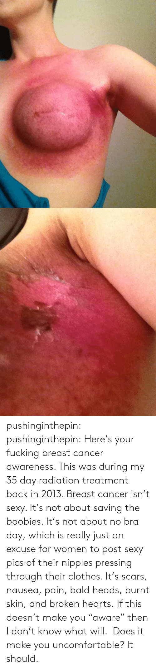"""Sexy Pics Of: pushinginthepin:  pushinginthepin:  Here's your fucking breast cancer awareness.   This was during my 35 day radiation treatment back in 2013. Breast cancer isn't sexy. It's not about saving the boobies. It's not about no bra day, which is really just an excuse for women to post sexy pics of their nipples pressing through their clothes. It's scars, nausea, pain, bald heads, burnt skin, and broken hearts. If this doesn't make you""""aware"""" then I don't know what will. Does it make you uncomfortable? It should."""