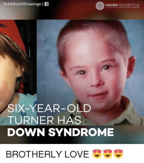 Down Syndrom: Robbscott Drawings I  HIGHER PERSPECTIVE  SIX-YEAR-OLD  TURNER HAS  DOWN SYNDROME BROTHERLY LOVE 😍😍😍
