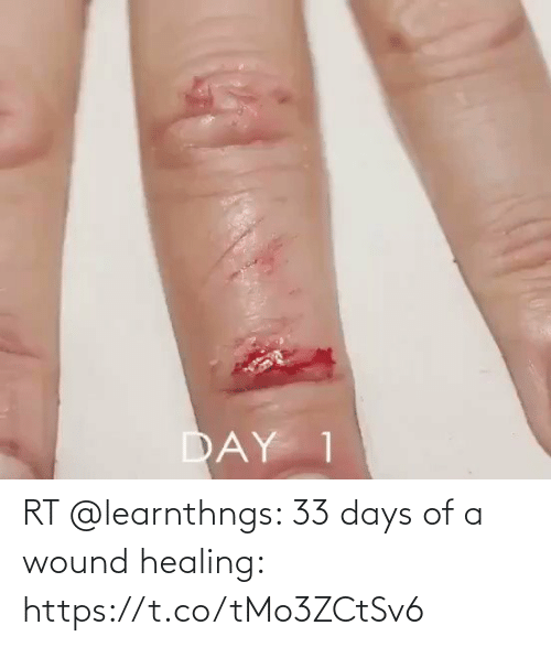 Healing: RT @learnthngs: 33 days of a wound healing: https://t.co/tMo3ZCtSv6