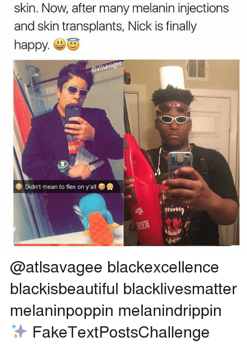 Flexes: skin. Now, after many melanin injections  and skin transplants, Nick is finally  happy  eatsavagee  Didn't mean to flex on y'all @atlsavagee blackexcellence blackisbeautiful blacklivesmatter melaninpoppin melanindrippin ✨ FakeTextPostsChallenge
