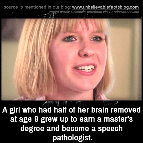 Memes, American, and Blog: source is mentioned in our blog: www.unbellevablefactsblog.com  ge credit Scientific American via Goodnewsnetwork  A girl who had half of her brain removed  at age 8 grew up to earn a master's  degree and become a speeclh  pathologist.