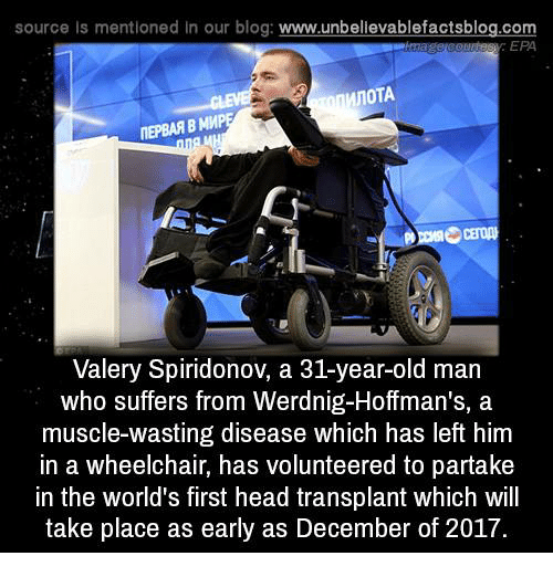 mmp: source ls mentioned In our blog  www.unbelievablefactsblog.com  EPA  MnoTA  ITEPBAAB MMP  Valery Spiridonov, a 31-year-old man  who suffers from Werdnig-Hoffman's, a  muscle-wasting disease which has left him  in a wheelchair, has volunteered to partake  in the world's first head transplant which will  take place as early as December of 2017.