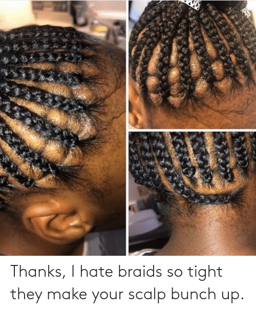 So Tight: Thanks, I hate braids so tight they make your scalp bunch up.